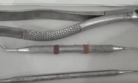 Homem é preso em Simonésia por exercer ilegalmente a profissão de dentista